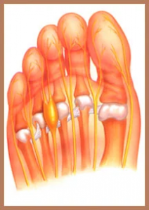 Illustration of under-side of foot