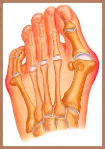 Graphic of a foot neuroma, illustration.